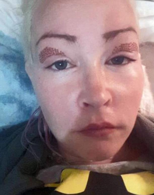 Женщина решилась на процедуру по поднятию век и очень пожалела: фото