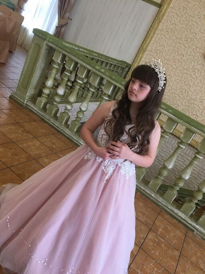 Українка з синдромом Дауна перемогла в престижному конкурсі краси