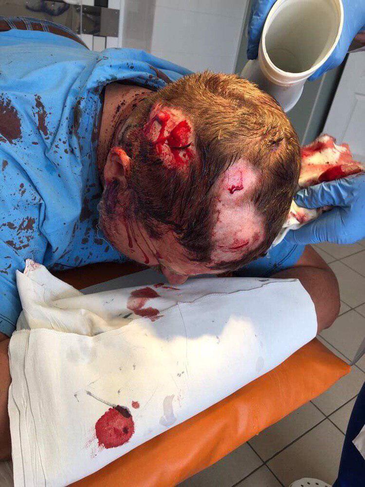Били кастетами по голові: в Харкові скоєно жорстокий напад на активіста