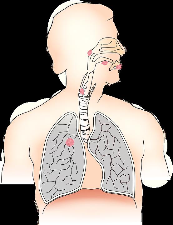 Ранние и поздние признаки рака легких, которые нельзя игнорировать