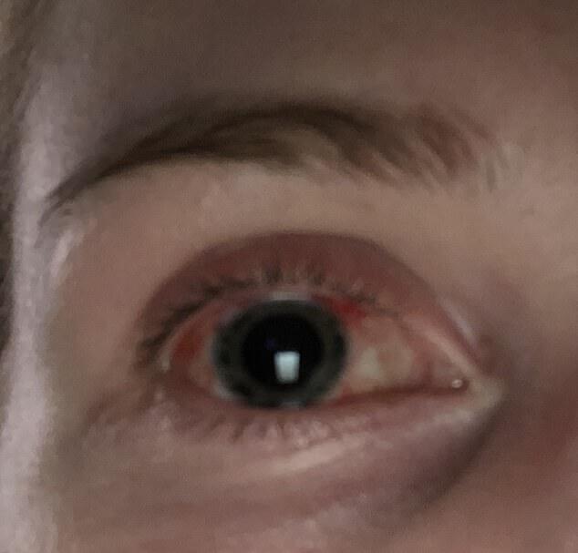 Молодая женщина после использования глазных капель проснулась слепой на один глаз