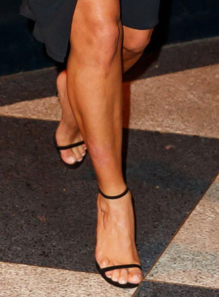На ногах Кім помітили псоріаз