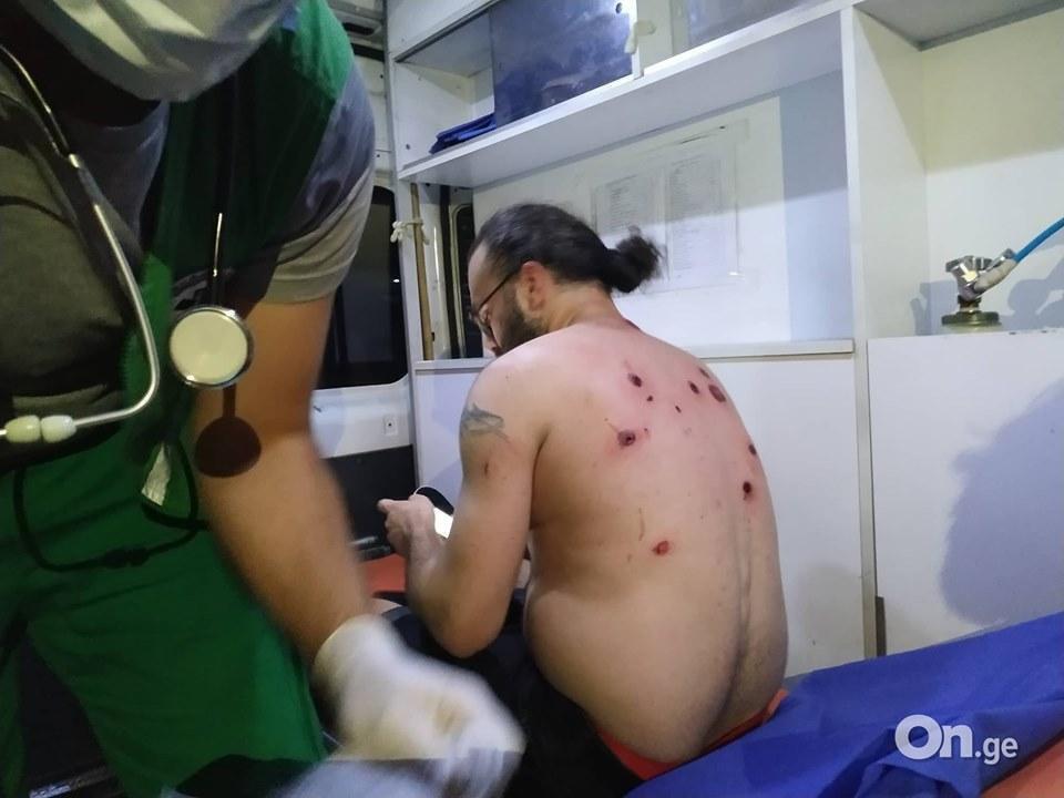 Потерпілий від куль мітингувальник