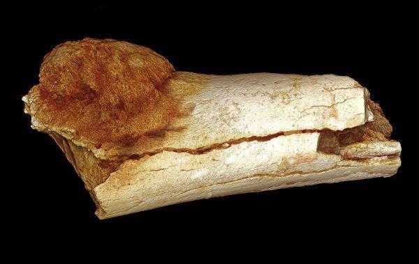Кость ноги австралопитека седиба, пораженная остеосаркомой