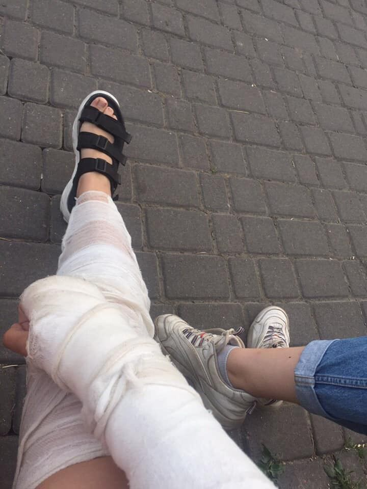 Рука й нога в гіпсі