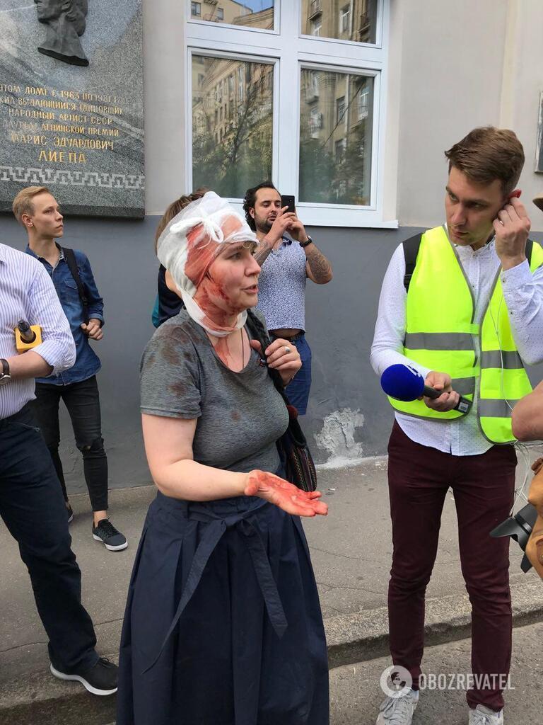 Полиция разбила голову Александре Парушиной