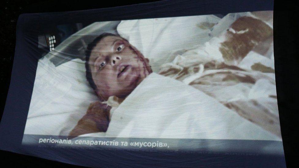 Екатерина Гандзюк в больнице