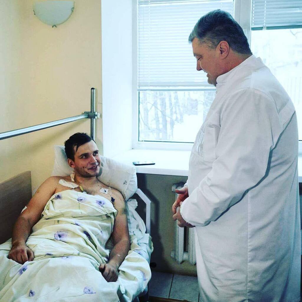 Історія 22-річного бійця, який втратив ногу на Донбасі