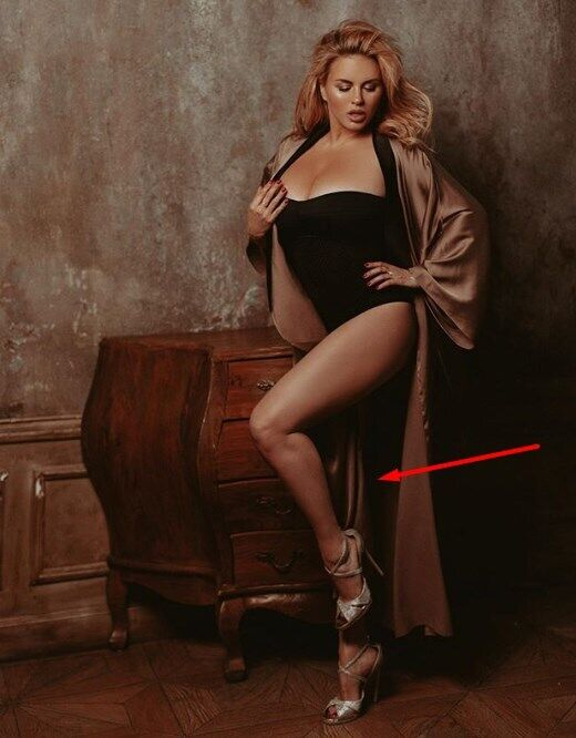 "Семенович показала фото ""без ноги"""