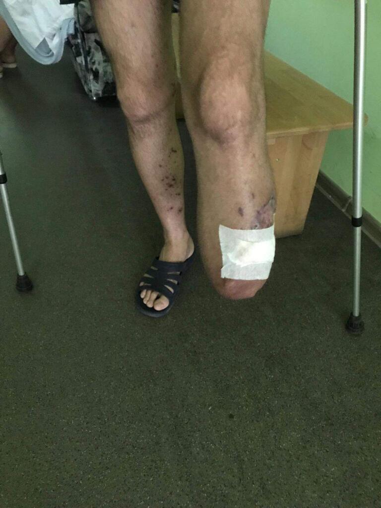 Раненый воин