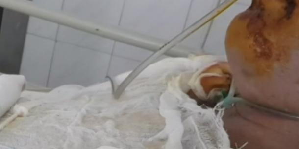 Вилив окріп у рот: деталі моторошного випадку в Запоріжжі