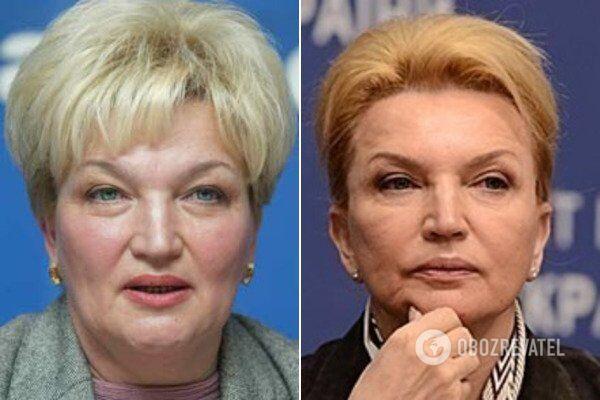 Богатырева до и после пластической операции