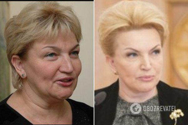 Раиса Богатырева до и после пластики