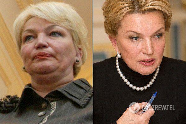 Раиса Богатырева до и после пластической операции