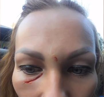 На Тернопільщині матері влаштували криваву бійню