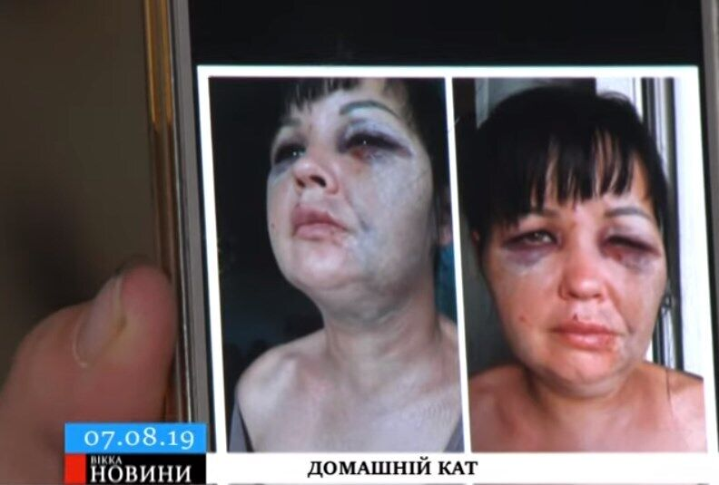 У Тетяни Лисенко струс мозку, переломи ребра і носа, ножове поранення і гематоми