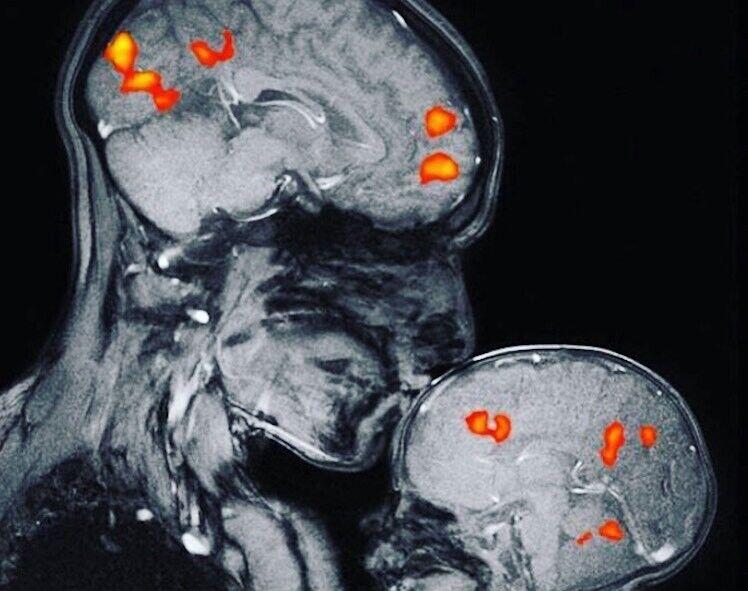 Магнитно-резонансный снимок, показывающий связь матери и ребенка