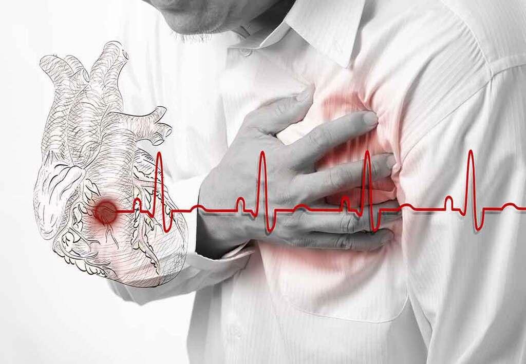 Ишемическая болезнь сердца – распространенная проблема современной кардиологии