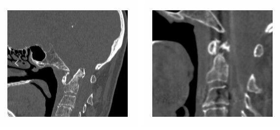 Травми жінки, які довелося усувати нейрохірургам