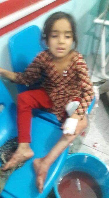 В теракте в Кабуле пострадали дети