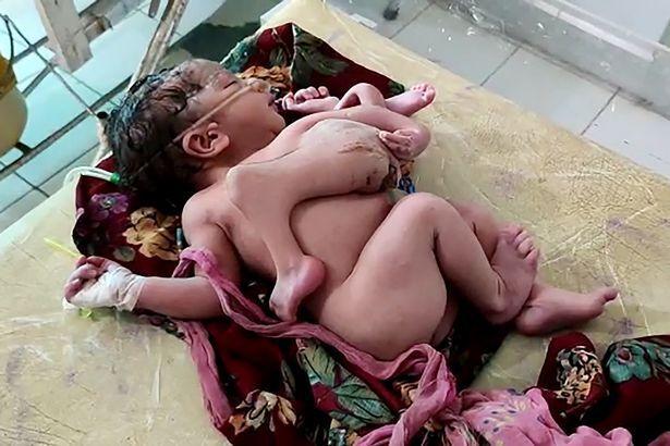 В Індії народилася дівчинка з 4 ногами і 3 руками
