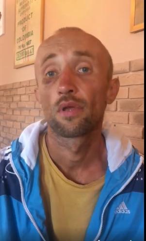 Игорь Гарматий после избиения в полицейском участке