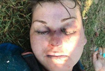 У Херсоні на пляжі знайшли вбиту жінку