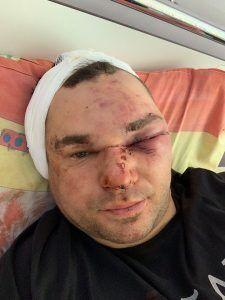 Александр Аганин стал инвалидом