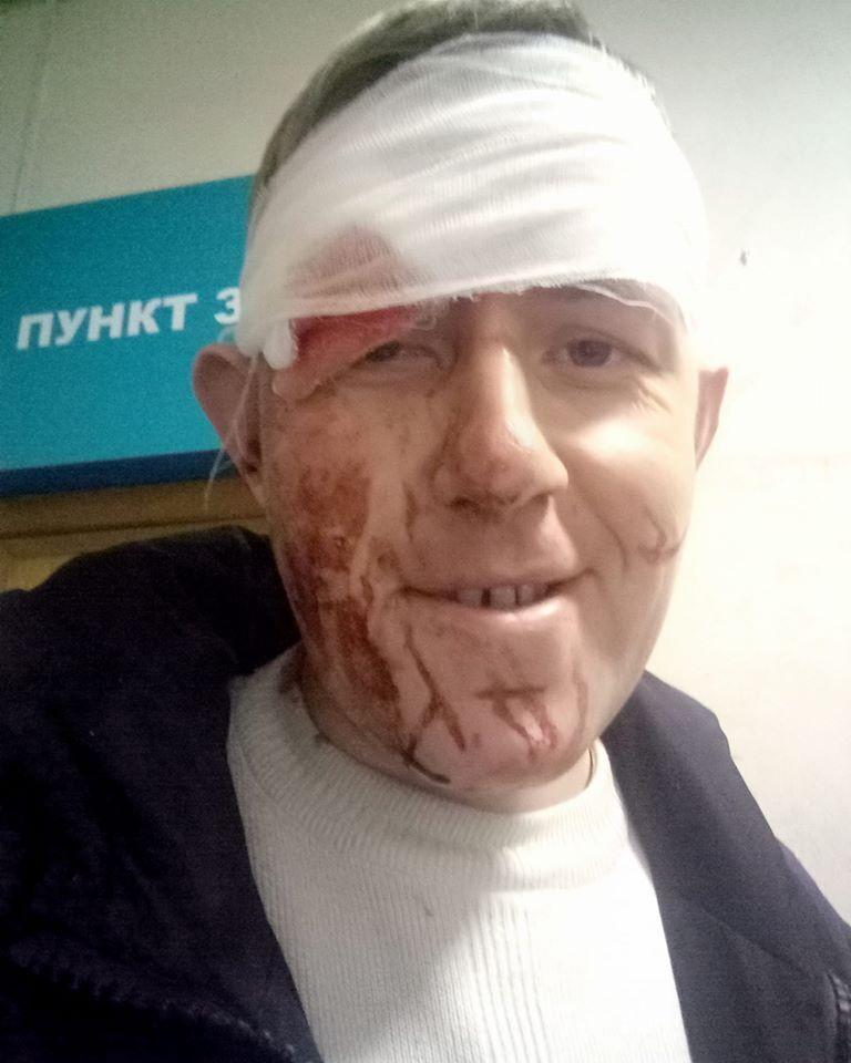 """В Днепре избили Дмитрия Иванова из """"Зважені та щасливі"""""""