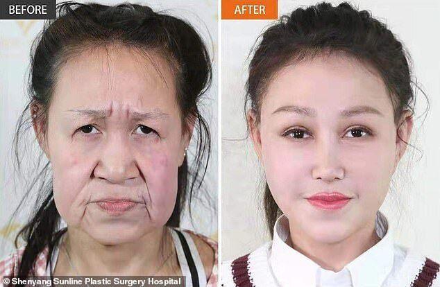 Сяо Фэн до и после операции