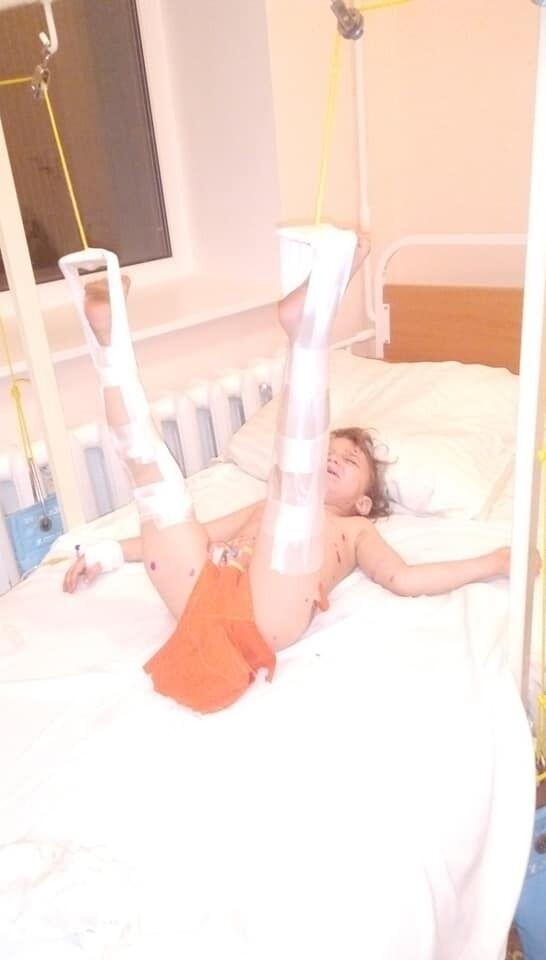Пострадавшему мальчику сделали операцию