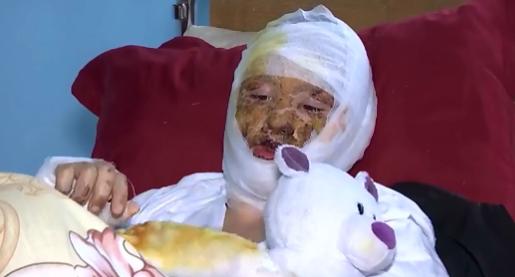 У 16-летней Ани глубокие ожоги лица, шеи и левой руки
