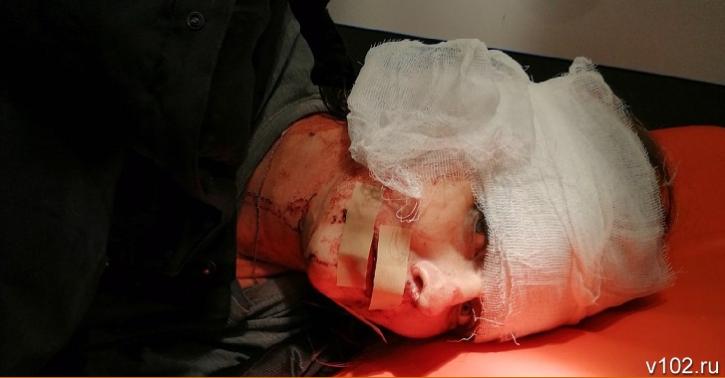 """У Волгограді (Росія) пасажир напав на 35-річну водійку """"Яндекс.Таксі"""", порізавши ножем її обличчя"""