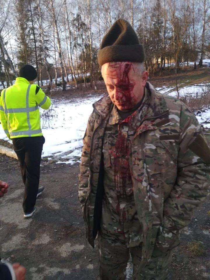 Избитый ветеран АТО