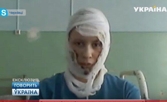 Пострадавшая от пожара 16-летняя Анна