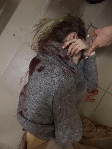 Пострадавшую после нападения доставили в больницу
