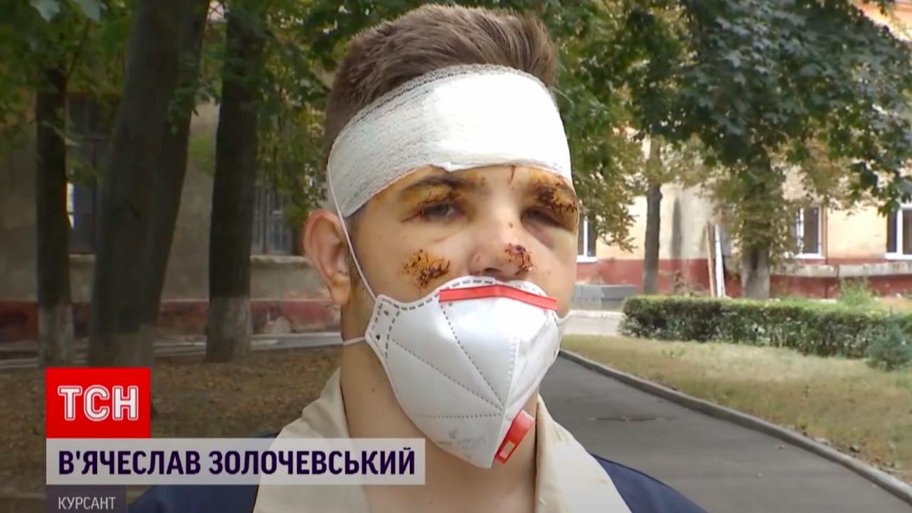У Вячеслава врачи диагностировали сотрясение головного мозга, ушибы и ожоги.