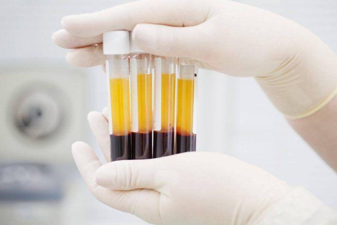 Плазма крові людей, які одужали, містить антитіла до COVID-19