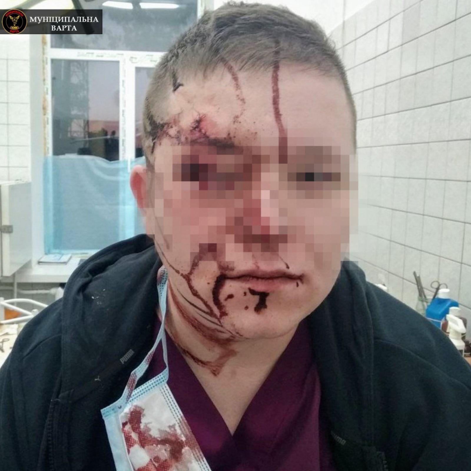 Врач госпитализирован с множественными травмами головы.