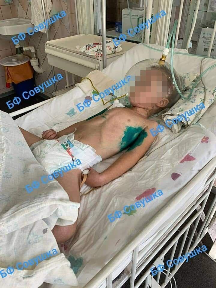 В Днепре спасают ребенка с коронавирусом.