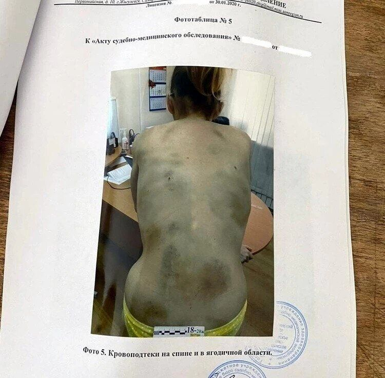 Женщина истощала до 35 кг