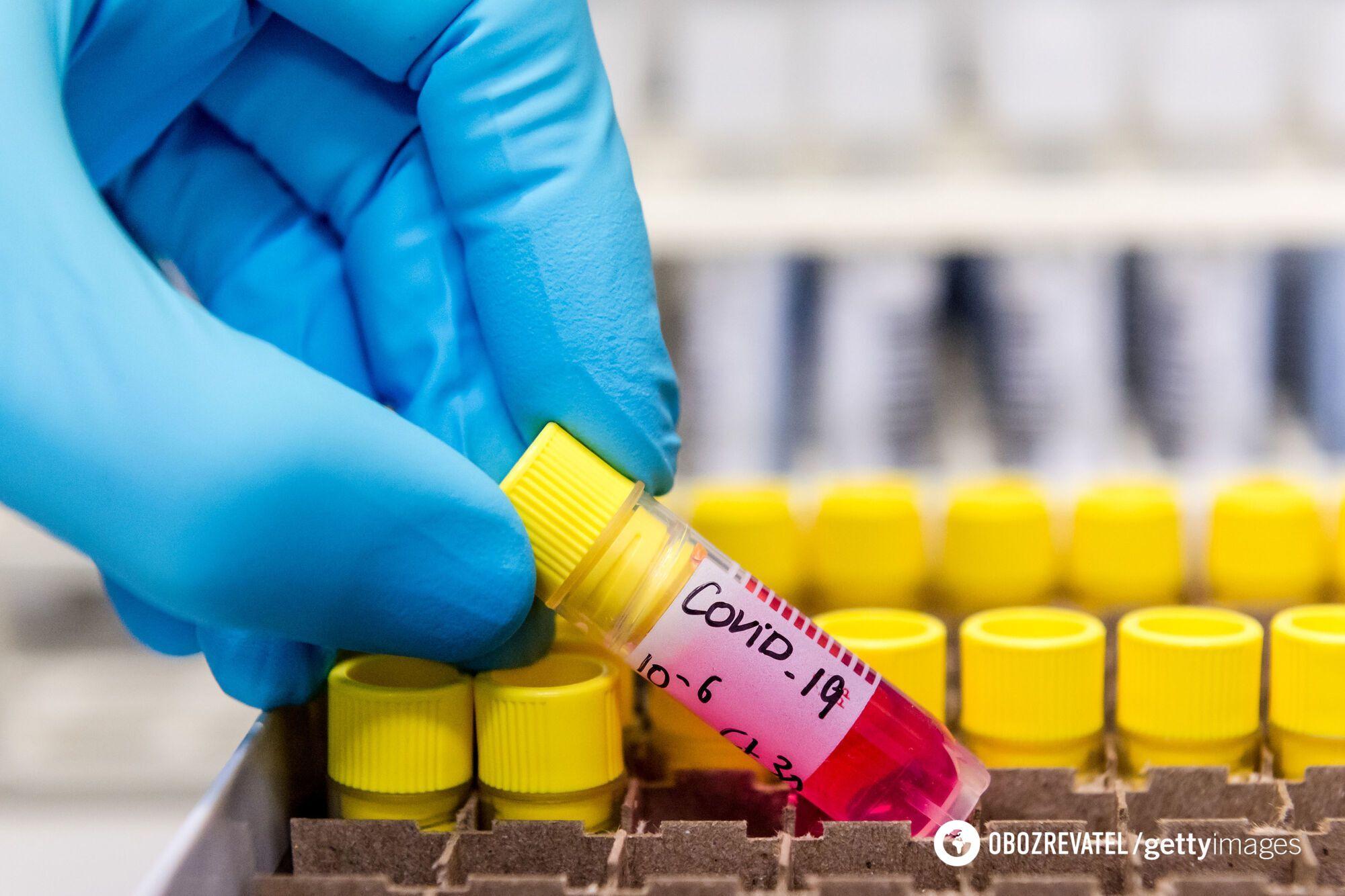 """""""Йдеться лише про початок клінічних випробувань вакцини""""."""