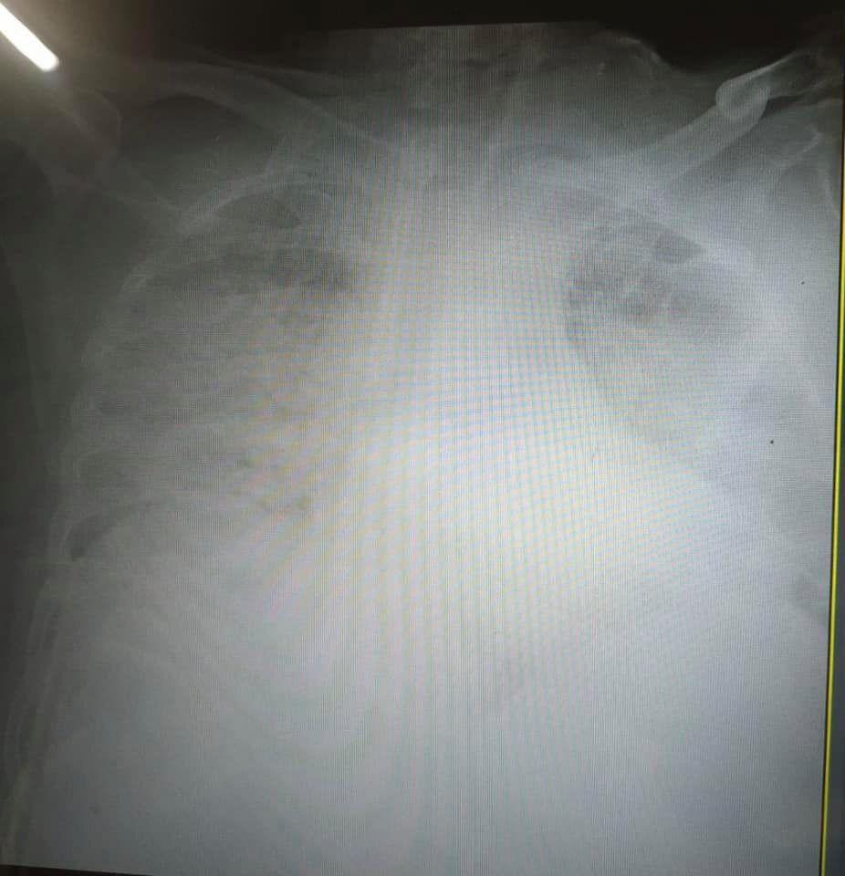 Легкие больных COVID-19