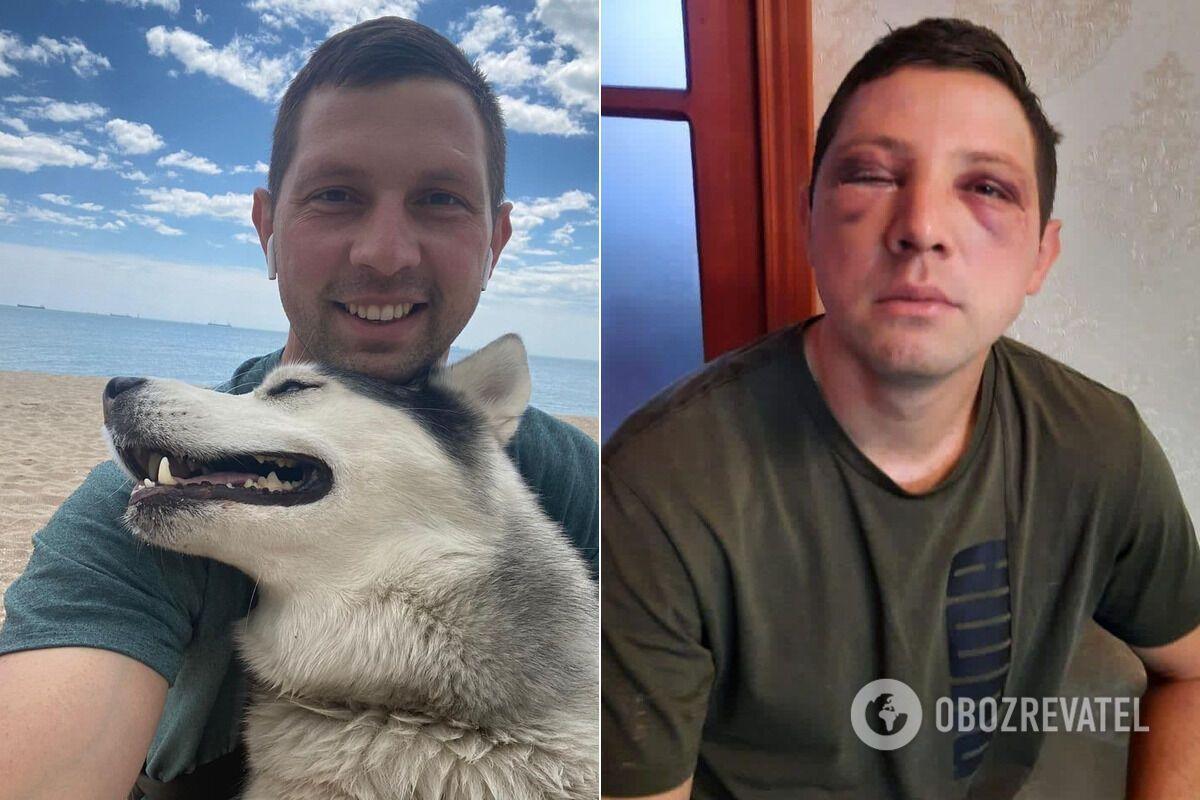 Дмитро Посмітний до і після викрадення