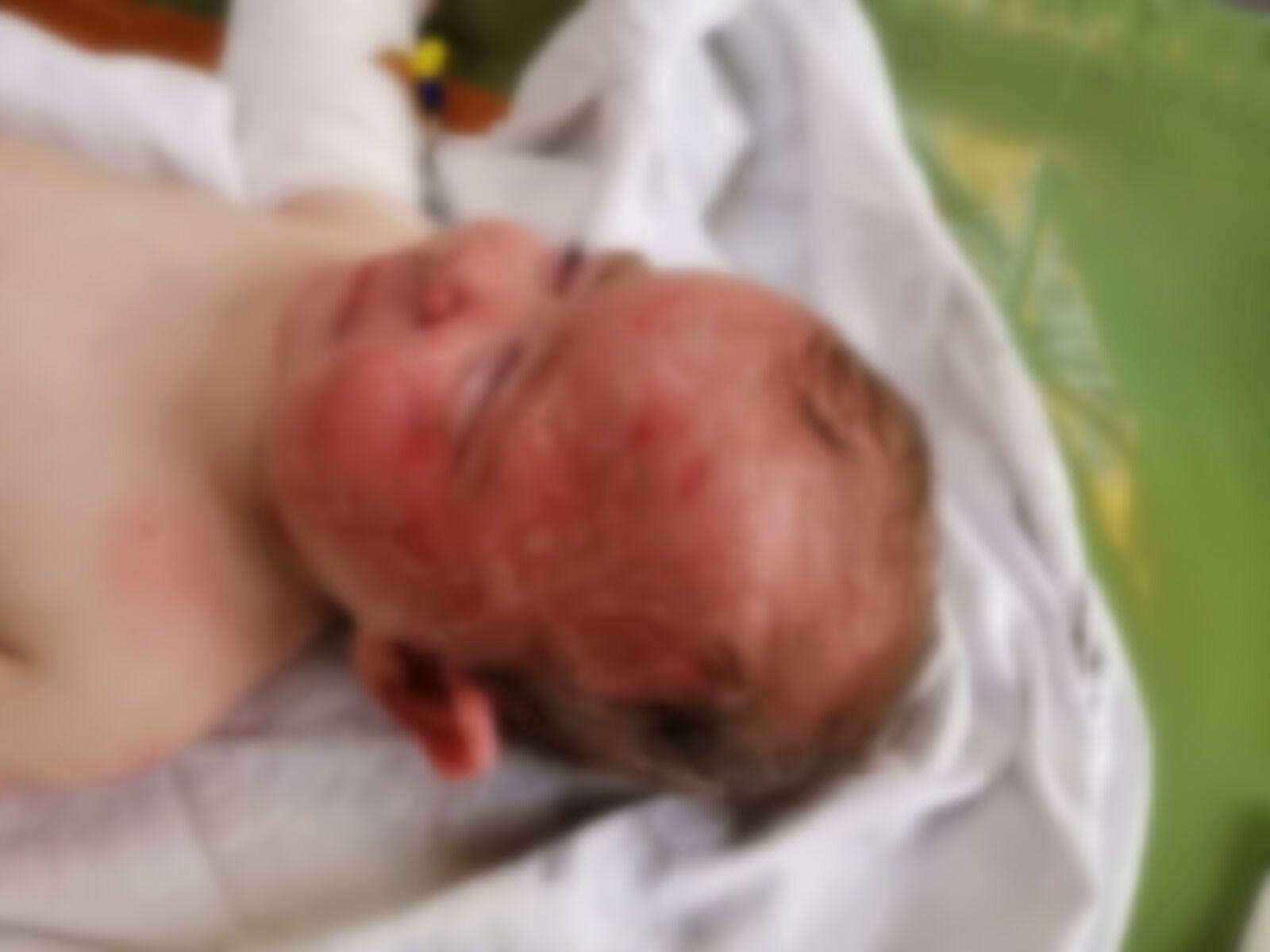 9-месячная Анна Мартыненко получила сильные ожоги