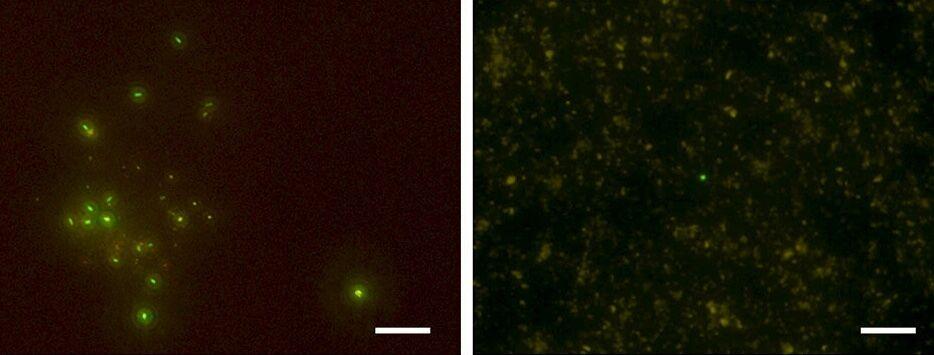 Флуоресцентна мікрофотографія клітин із зразків: ліворуч – із глибини 652 метрів (температура +76), праворуч – 1177 метрів (+120)