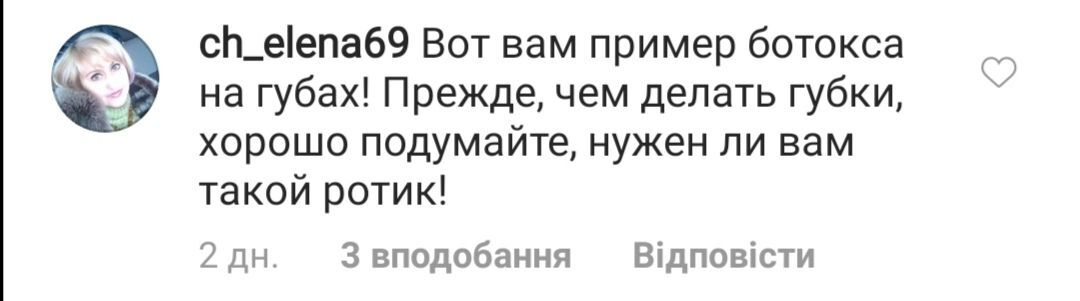 Пугачева взбудоражила сеть внешним видом после пластики