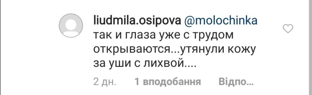 Не ворушиться губа: Пугачова розбурхала мережу зовнішнім виглядом після невдалої пластики