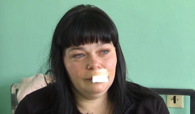 На Львівщині п'яний ексАТОвець побив фельдшера