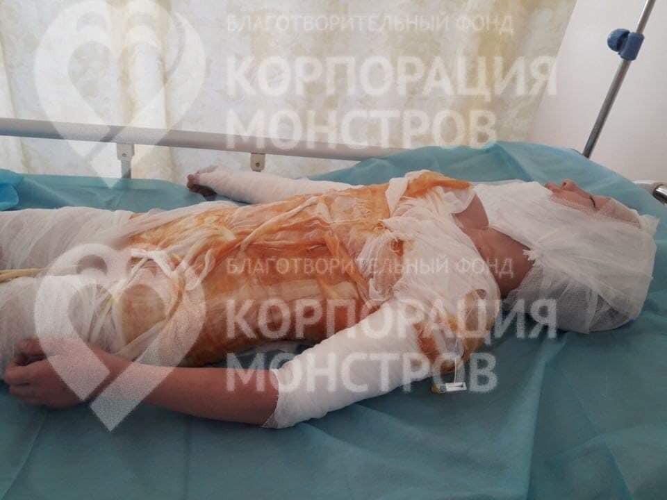 На Одесщине ребенок попал в больницу с жуткими ожогами